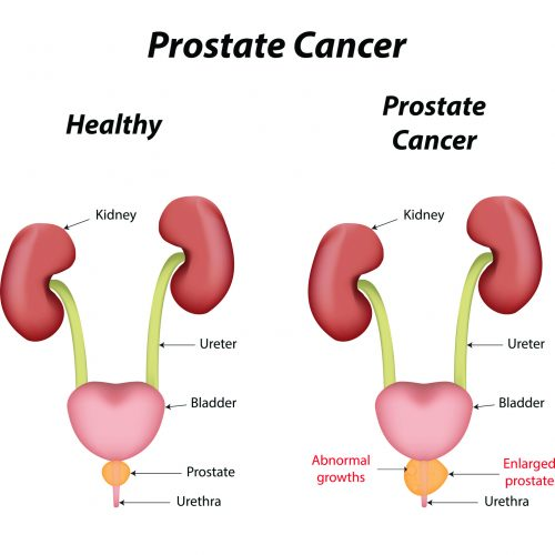 Quick facts about prostate cancer