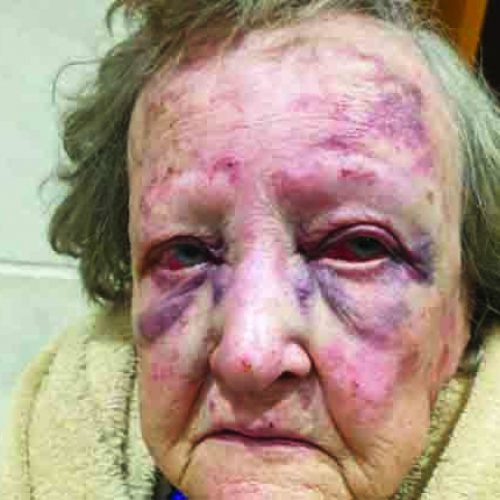 80-year-old woman kidnapped, dumped  in Lesotho